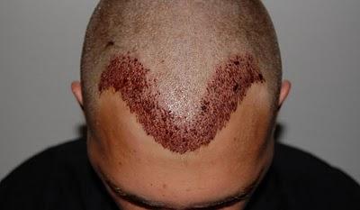 04-Hair-Transplant-Doctor-Patient-2-PostOp-Front.jpg