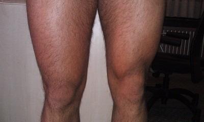 quads spieren